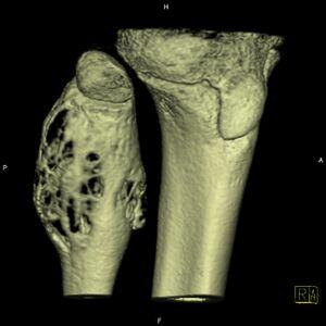 Aneurysmal bone cyst (ABC) (Radiopaedia 14333-14240 bone window 2).jpg