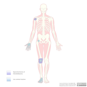 Chondroblastoma - distribution (diagram) (Radiopaedia 9270).png
